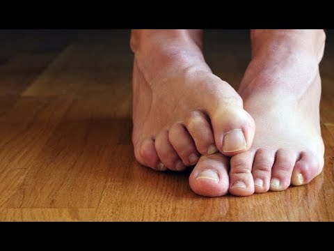 Valgus เท้าแบน