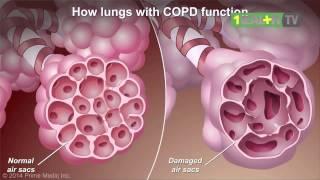 4 Organ Yang Rusak Akibat Merokok
