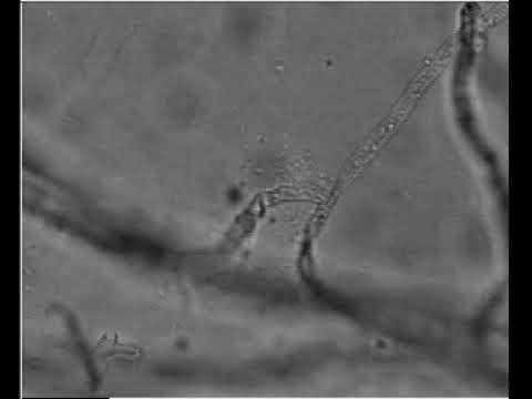 Paraziták degenerációja