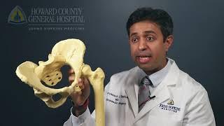 Q&A - Hip Fracture Treatment