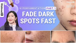 How to Get Rid of Hyperpigmentation, Brightening Skincare Routine   Fade Face Dark Spots Fast part.1