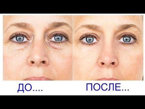 Самый эффективный крем от морщин под глаза
