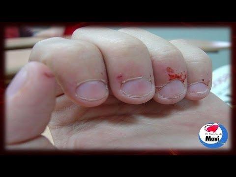 Las medicinas para el tratamiento el hongo las uñas