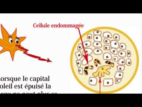 Épithélium de la glande de la prostate dans lurine