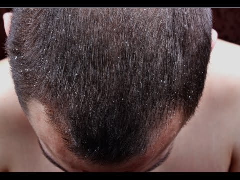 Video How to Cure Dandruff Permanently