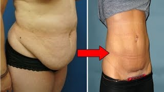 How to Lose Hanging Belly Fat After C Section | Flat Stomach After Cesarean #NaturalRemedies