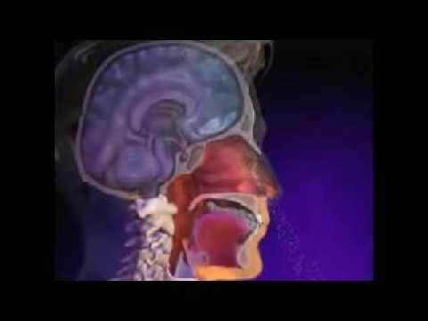 Que lon ne peut pas au stade initial du psoriasis