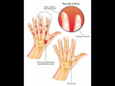 Durere din sacrul articulației șoldului