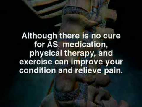 Osteofity der Halswirbelsäule die Behandlung