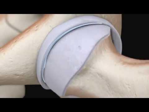 Caviglia gonfia dopo linfortunio