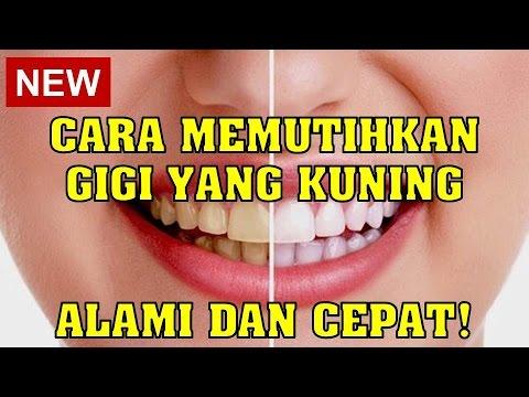 Video Cara Memutihkan Gigi yang Kuning, Alami dan Cepat!