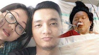 Trauma usai Dibakar Mantan Pacar, Mahasiswi di Medan Tulis Sesuatu: Kawani Aku, Takut Dia Datang