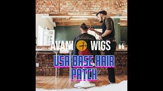 men hair patch in delhi