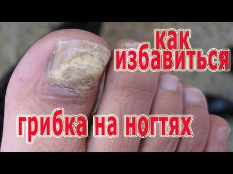 Gribok des Nagels die Entzündung des Fingers