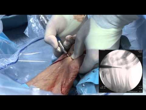Eliminazione del cono su un pollice di gamba Volgograd