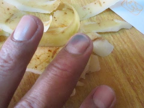 El ungüento del hongo sobre el dedo