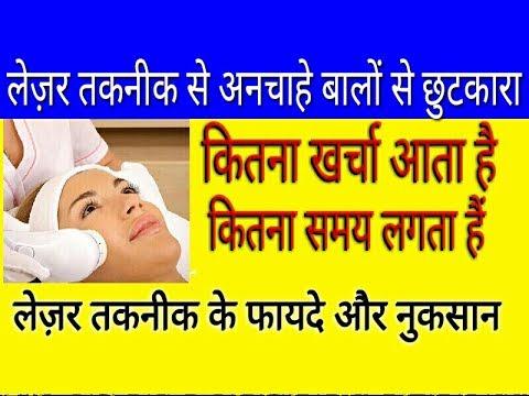 Ano ang Botox para sa facial litrato