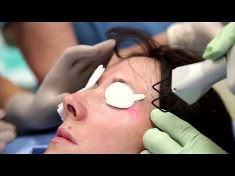 Mask para sa dry facial wrinkles