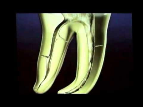 Нехирургическое перелечивание в эндодонтии. Клиффорд Раддл