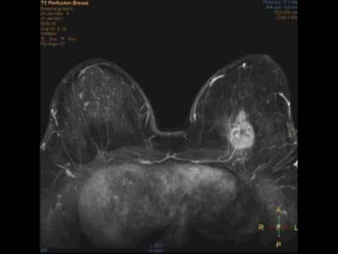X-ray mostra come osteocondrosi
