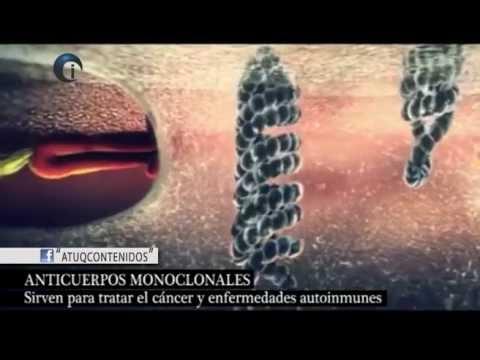 Fibrosis de los lóbulos prostáticos