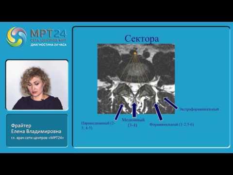 «МРТ-диагностика дегенеративных изменений, травм и других патологий  позвоночника»