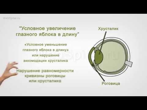 Лазерная коррекция зрения дают больничный