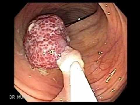 Warum eine Prostata-Biopsie