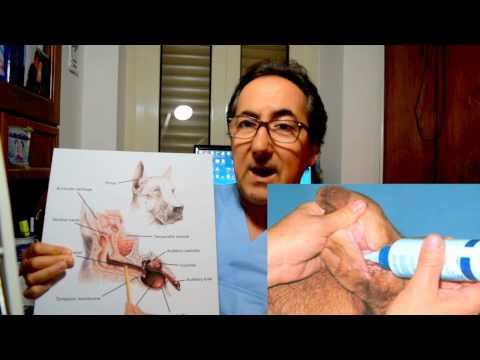 Hpv cancer do colo do utero sintomas