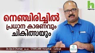 നെഞ്ചിരിച്ചിൽ പ്രധാന കാരണവും ചികിത്സയും   Acid Reflux Malayalam Health Tips