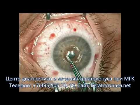 Наилучшие упражнения для глаз при близорукости