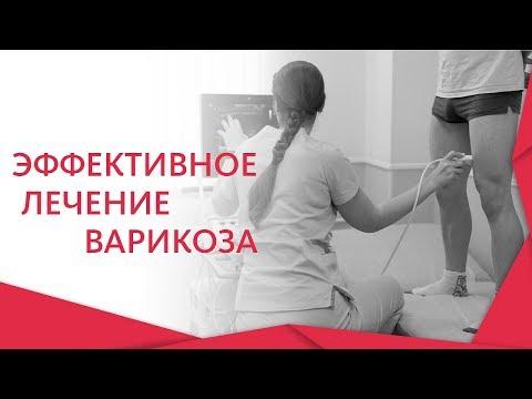 Болят вены на ногах. 👣 Что делать, если болят вены на ногах? Альфа — Центр Здоровья. 12+