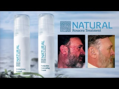 How to cure rosacea naturally with the best rosacea skin care products