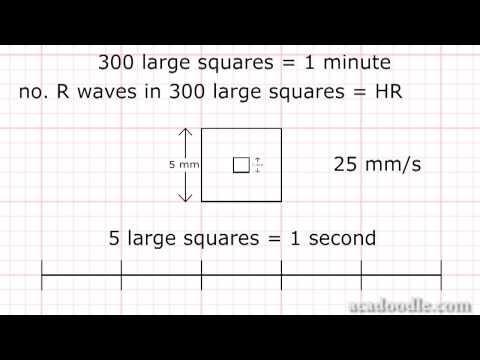 EKG - częstość rytmu