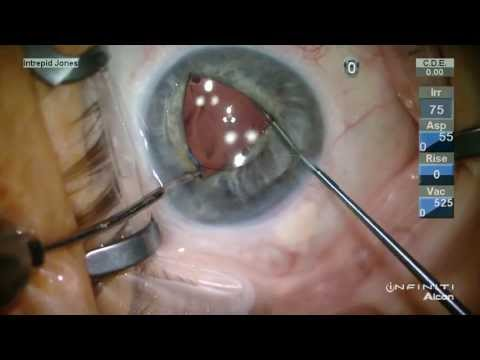 Iris Suture Fixation of a 3pc PCIOL