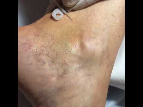 Sclerotherapy Treatment of our Bulgarian Patient