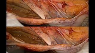 Laparoscopic 3D anatomy of female inguinal area and pelvis