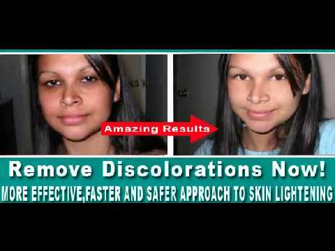 Mukha pigmentation langis ng oliba