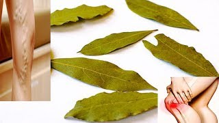 With This Leaf You No More Varicose Veins, No Joint Pains and No Headaches