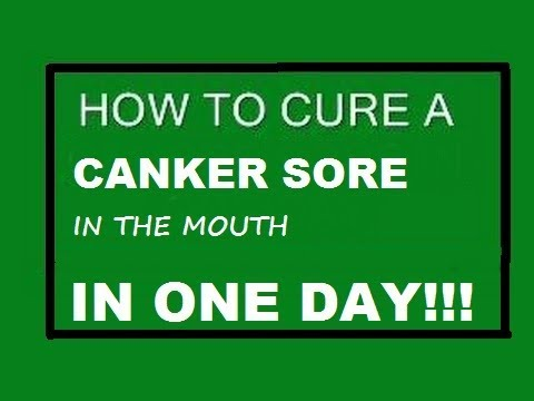 Video CURE A CANKER SORE IN ONE DAY, heal mouth ulcers, NO FAIL, proven, tested