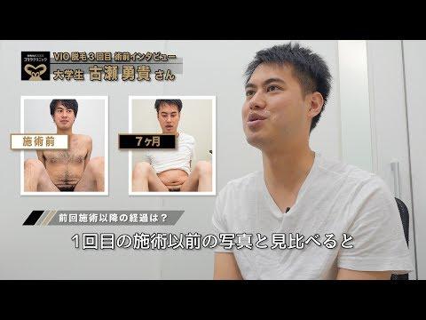 【ゴリラ 脱毛】古瀬勇貴さん03|「VIO」の完全脱毛に挑戦