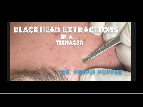 Army of Blackheads