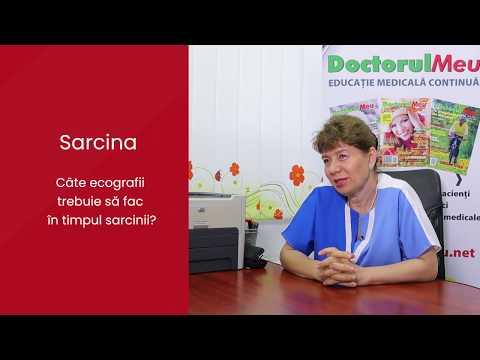Sarcina cum se evita varicoza