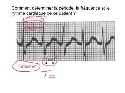 La pression artérielle est le minimum pour la vie