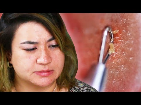 People Try Pimple Extractors