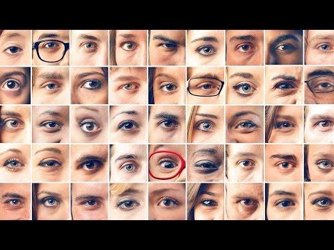Снижение остроты зрения на правый глаз