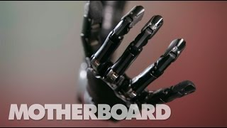 This Mind-Controlled Bionic Arm Can Touch and Feel