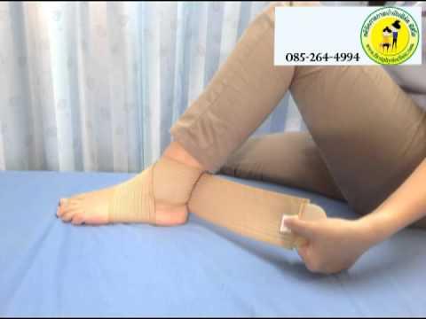 Thrombophlebitis ของแขนขาลดลงและการบีบอัด