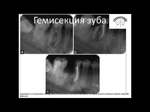Хирургическая стоматология. Гемисекция зуба. Все этапы.