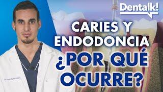 Endodoncia y otros tratamientos para la caries: preguntas frecuentes – Dentalk! ©️